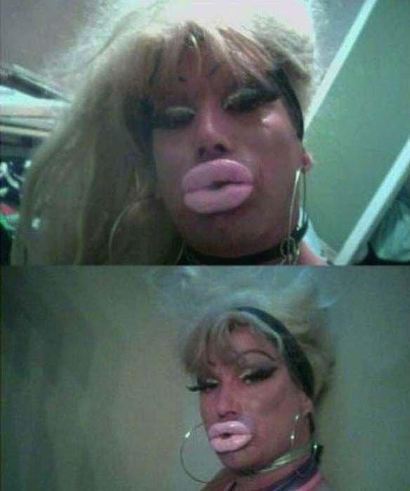 Огромные срамные губы фото 117