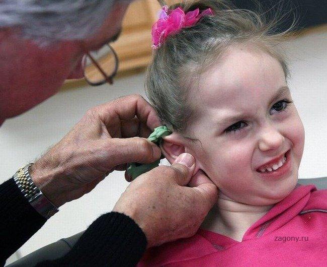 Пластический хирург делает новое ухо для маленькой девочки. . Очень классн
