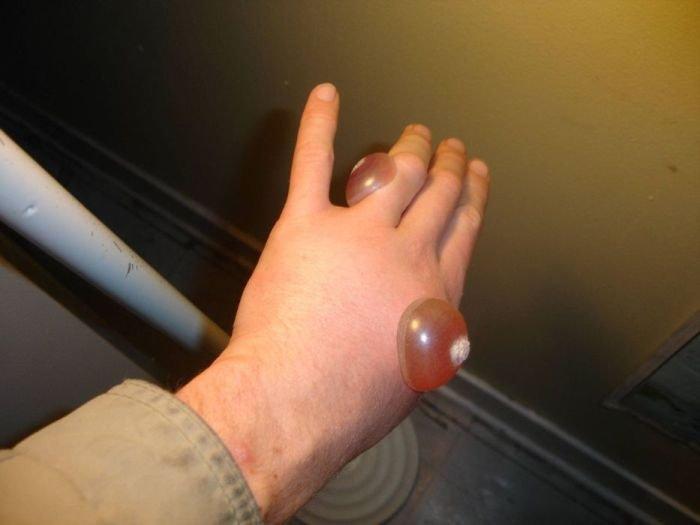 Ожог от жидкого азота (7 фото)