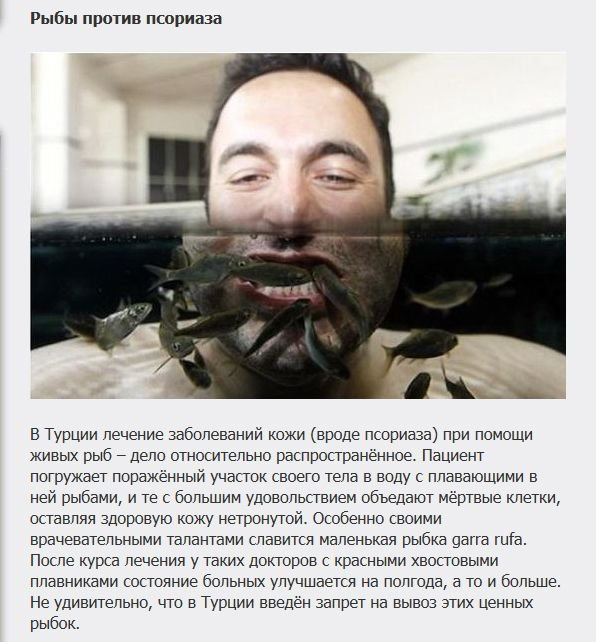 Необычные способы лечения (7 фото)