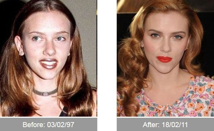 До и после (40 фото)