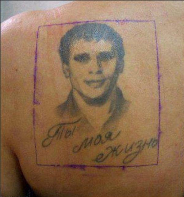 Удаление татуировки (2 фото)