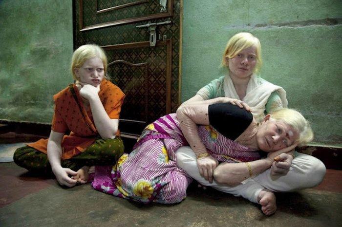 Семья альбиносов (4 фото)