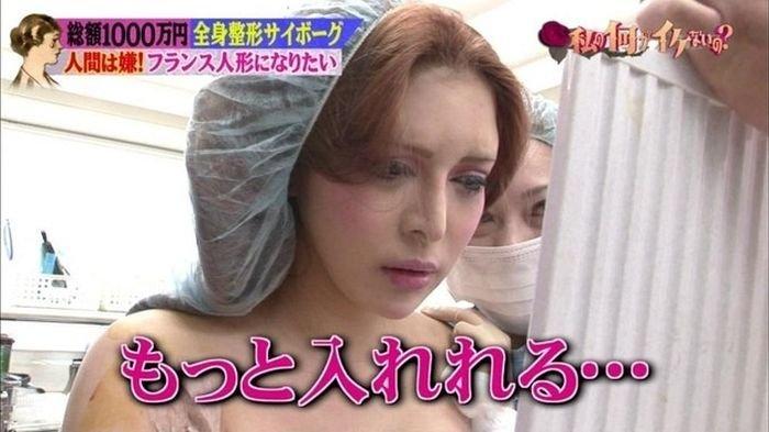 Девушка из Японии до и после пластических операций (15 фото)
