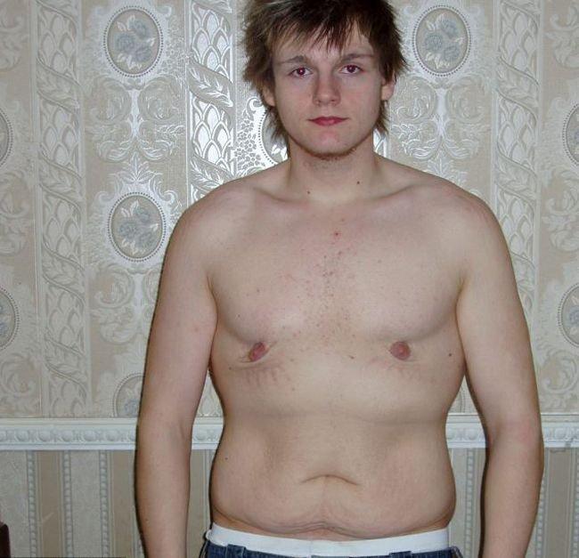 Паренек похудел на 73 килограмма (7 фото)