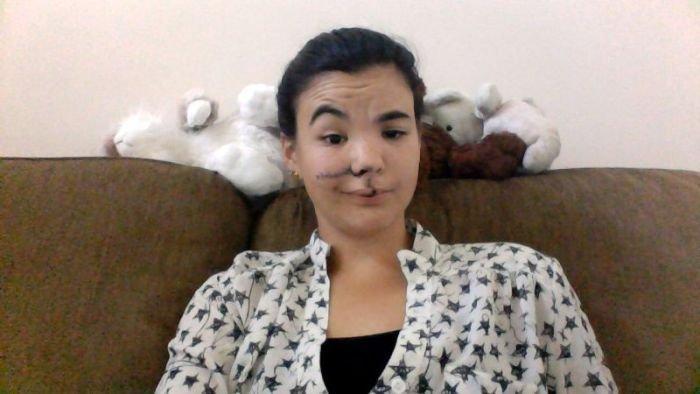 Последствия удара копытом в лицо (10 фото)