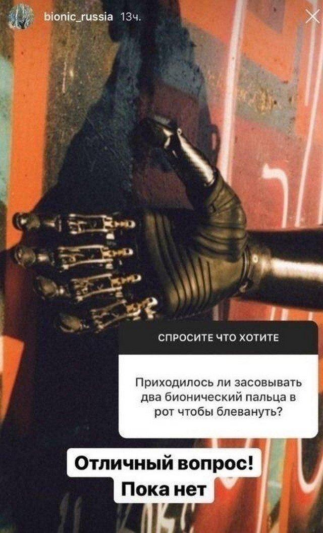 Парень с биомеханическими протезами рук о нюансах жизни (10 фото)